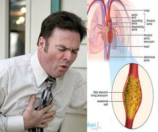 heartburn chest pain during pregnancy