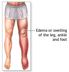 Foods That Can Cause Leg Pain